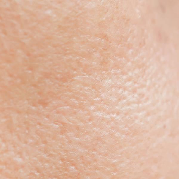Artikel over acne - hoofdpagina